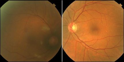 Потеря зрения после операций на позвоночнике