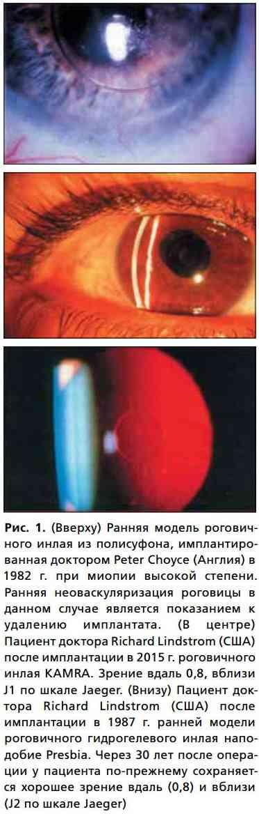 Рис. 1. (Вверху) Ранняя модель роговичного инлая из полисуфона, имплантированная доктором Peter Choyce (Англия) в 1982 г. при миопии высокой степени. Ранняя неоваскуляризация роговицы в данном случае является показанием к удалению имплантата. (В центре) Пациент доктора Richard Lindstrom (США) после имплантации в 2015 г. роговичного инлая KAMRA. Зрение вдаль 0,8, вблизи J1 по шкале Jaeger. (Внизу) Пациент доктора Richard Lindstrom (США) после имплантации в 1987 г. ранней модели роговичного гидрогелевого инлая наподобие Presbia. Через 30 лет после операции у пациента по-прежнему сохраняется хорошее зрение вдаль (0,8) и вблизи (J2 по шкале Jaeger)