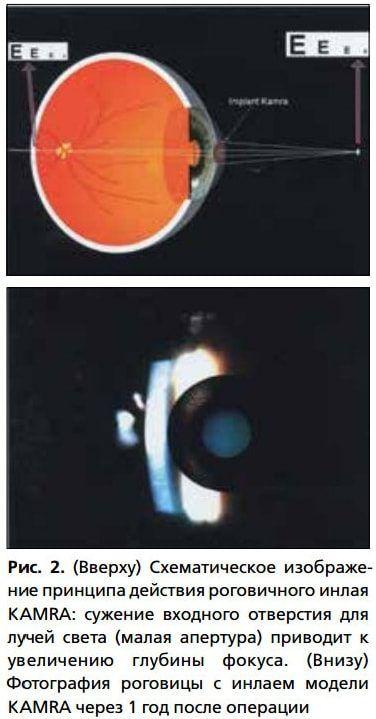 Рис. 2. (Вверху) Схематическое изображение принципа действия роговичного инлая KAMRA: сужение входного отверстия для лучей света (малая апертура) приводит к увеличению глубины фокуса. (Внизу) Фотография роговицы с инлаем модели KAMRA через 1 год после операции